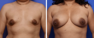 tuberous breast before and after