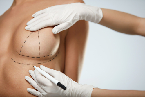 beautician hands In gloves drawing surgical lines on beautiful woman breast-img-blog